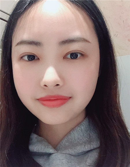 【整形日记】分享我在荆州做双眼皮开眼角恢复前后对比图