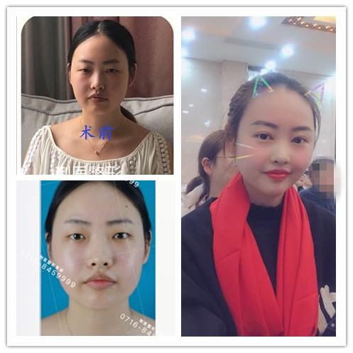 【整形日记】分享荆州董洁割双眼皮七天恢复过程对比图