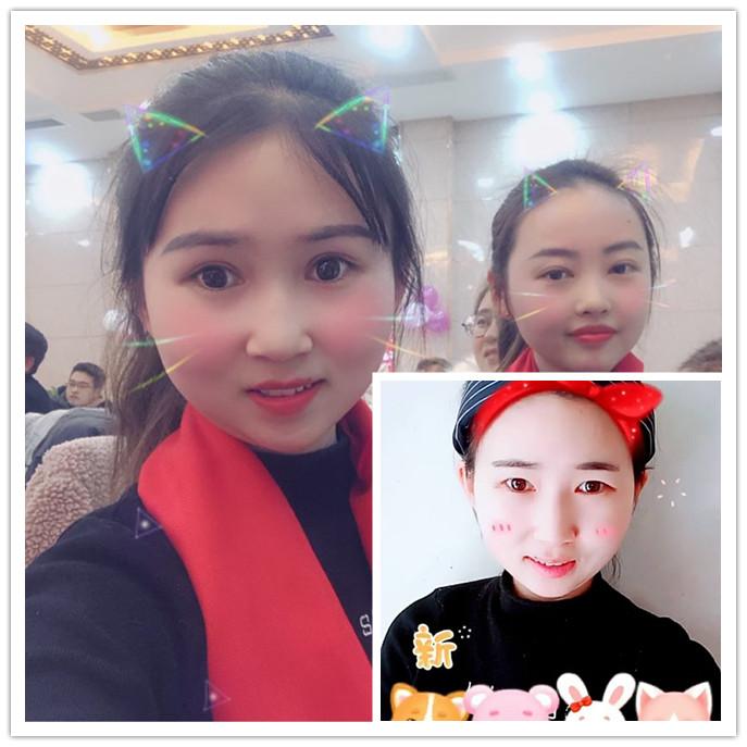 荆州双眼皮真人案例【双眼皮7天】前后的生活变化