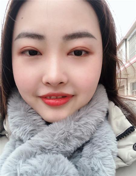 荆州真人双眼皮、开眼角手术分享 附术前术后对比图