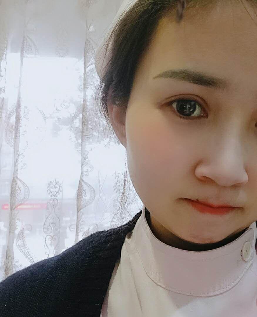 分享荆州双眼皮真人案例60天前后效果对比图
