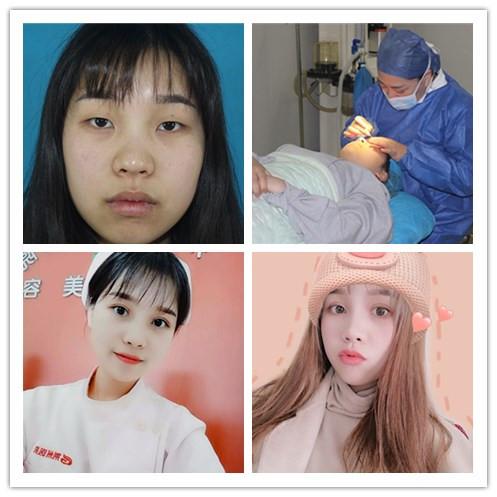 分享荆州割双眼皮开眼角手术真人案例 附3个月对比图