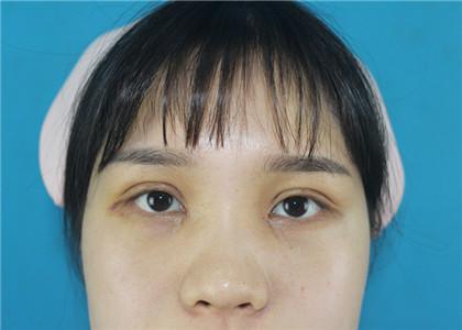 分享荆州田方兴主任做双眼皮、开眼角三个月前后效果对比图